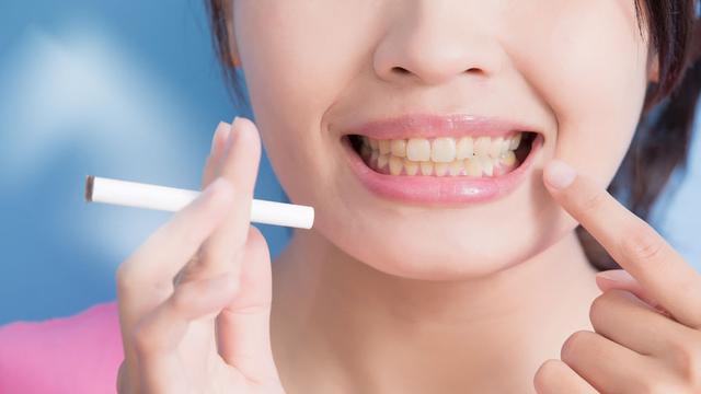 Nikotin bisa menyebabkan gigi menguning